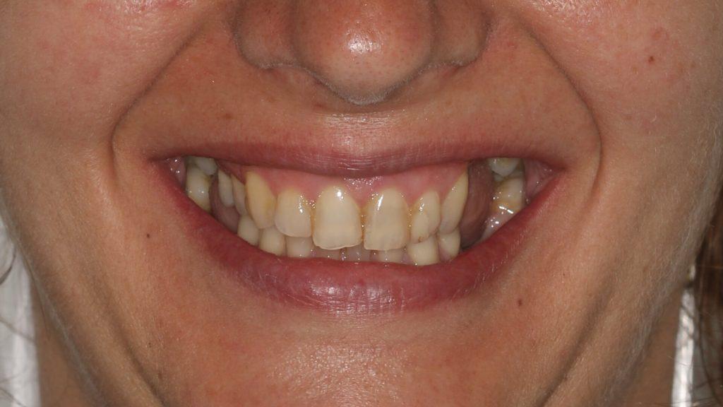 Reabilitação Estética com facetas cerâmicas e implantes