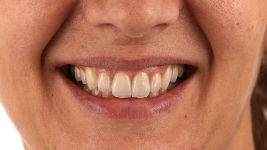 Reabilitação Estética com facetas cerâmicas e implantes Dentários